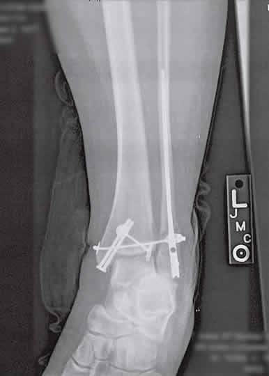 Broken leg with terminator-like hardware