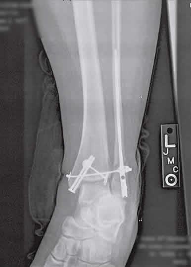 Broken leg with terminator-like hardware